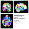 Human Brainnetome Atlas